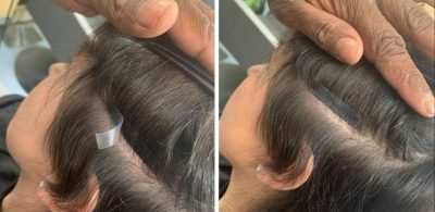 hair extensions for hair loss at salon la reine