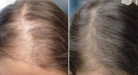 female pattern hair loss
