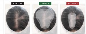 correct and incorrect fit of hair toppers